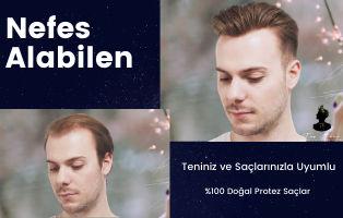 Doğal Protez Saç İstanbul- Tap Hair Türkiye Akademik Protez Saç