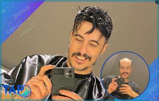 Kişiye Özel Protez Saç Nedir? Tap Hair Protez Merkezi