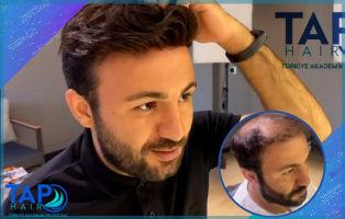 Komple Protez Saç Nasıl Olur? Belli Eder Mi? Tap Hair