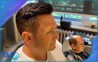 Protez Saç Aşamaları Nelerdir? Tap Hair Protez Saç