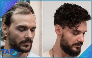 Türkiye de En Çok Tercih Edilen Protez Saç Neden Tap Hair