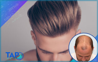 Protez Uzun Saç- Tap Hair İstanbul