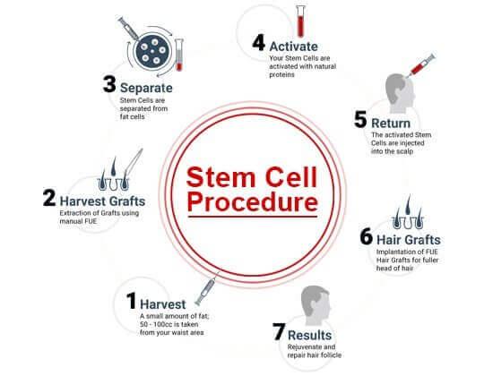 Stem cell FUE