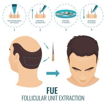 Follicular Unit Extraction (FUE)
