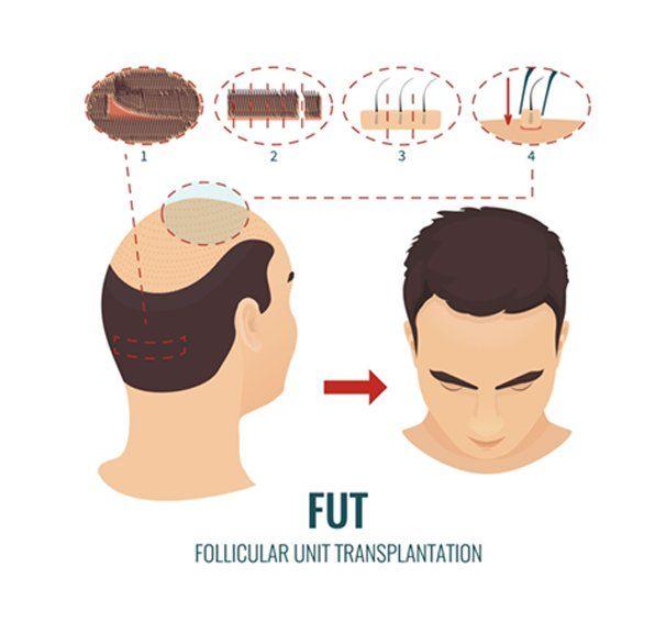 FUT Hair Transplant Toronto