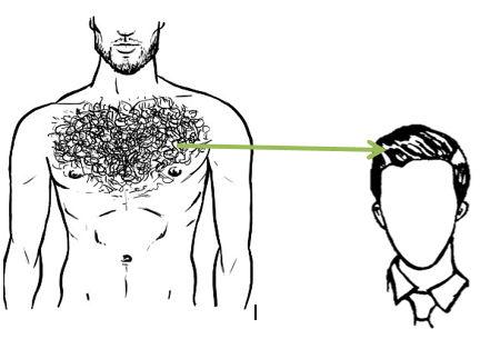 Body hair transplant in Mumbai