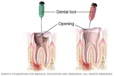 https://www.mayoclinic.org/-/media/kcms/gbs/patient-consumer/images/2013/11/19/10/14/de00010-getting-started-on-root-canal-treatment.jpg