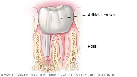 Illustration showing crown and tooth restoration