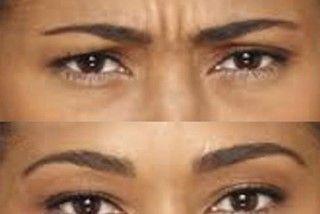 Forehead anti wrinkle treatment