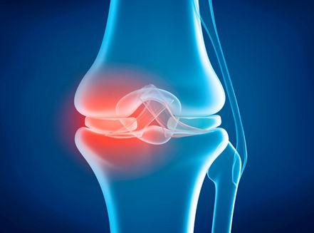 Knee Replacement Procedure