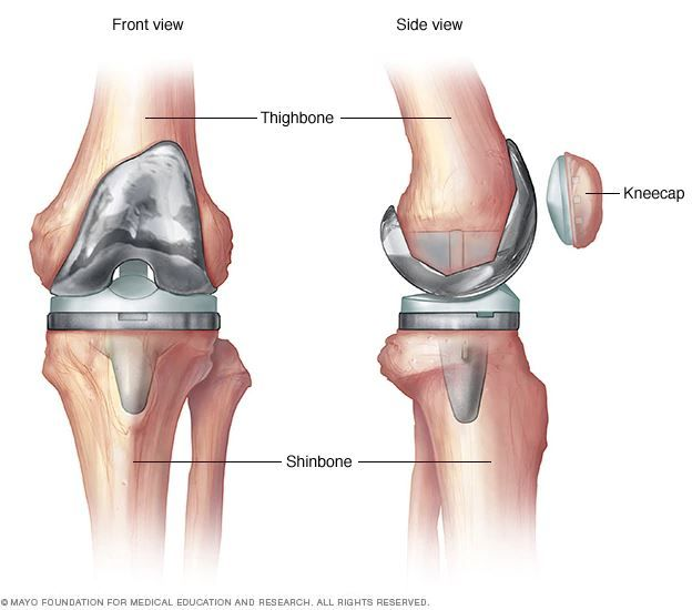 Results after a Knee Replacement