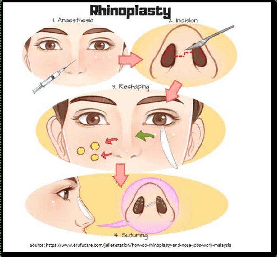 Types of Rhinoplasty