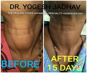 Before and after images of thyroid treatment done by Dr Yogesh jadhav