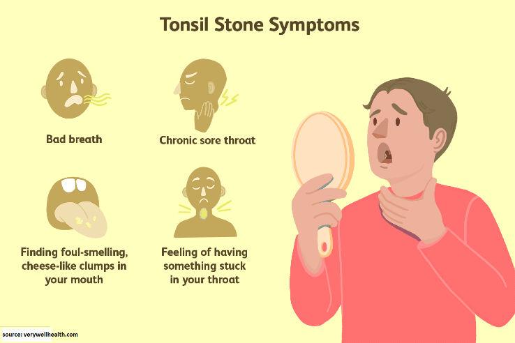 Symptoms of Tonsil Stones