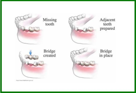 procedure of making dentures