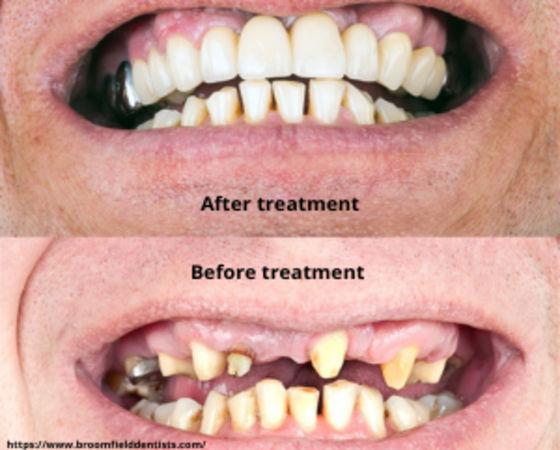 Full mouth restoration - Dental clinic in Navi Mumbai
