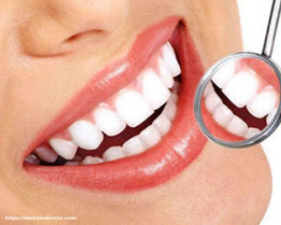 Smile design - Dental clinic in Navi Mumbai