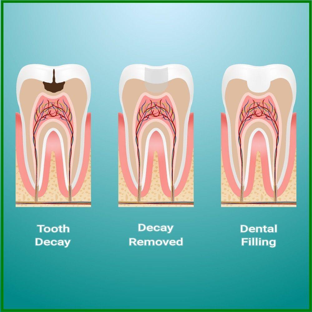 procedure of dental filling