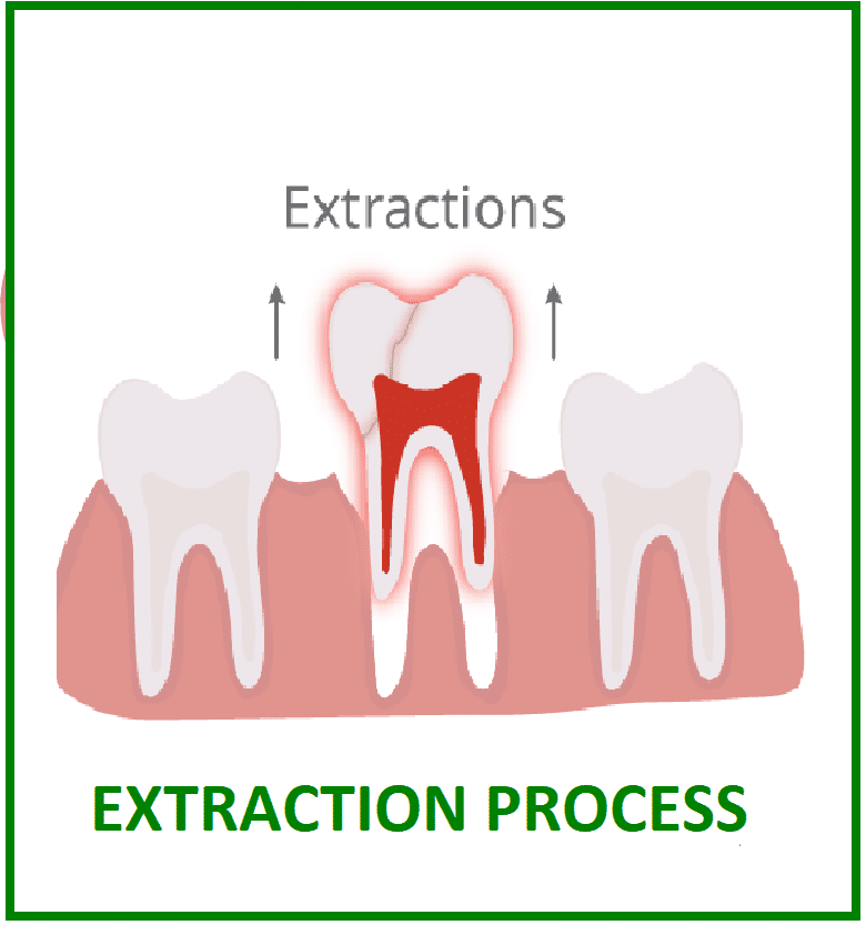 procedure for tooth extraction