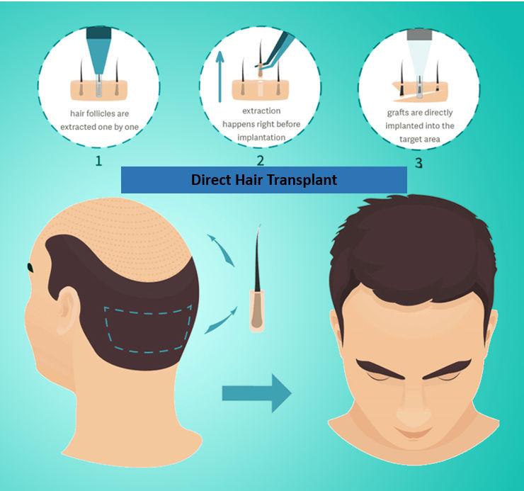 Direct hair transplant in Jaipur
