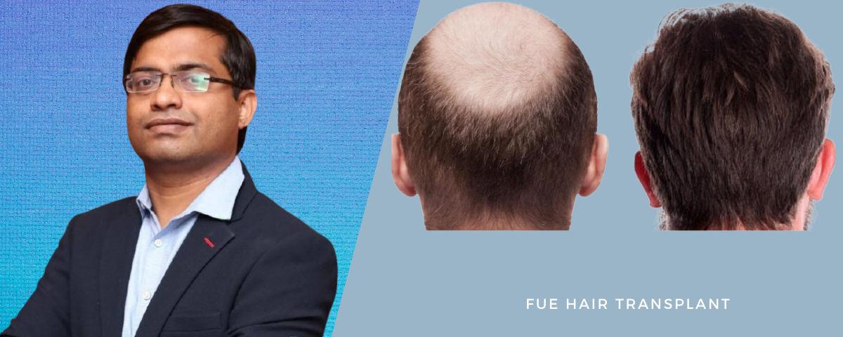 Best FUE Hair Transplant in Navi Mumbai