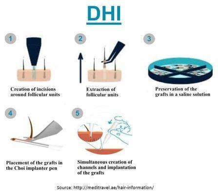 Direct Hair Transplant