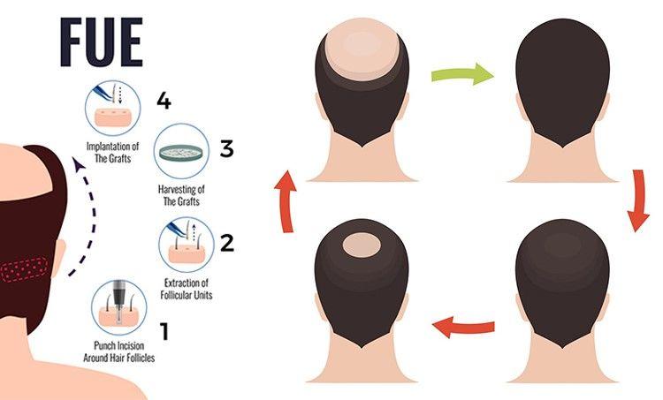 best FUE hair transplant