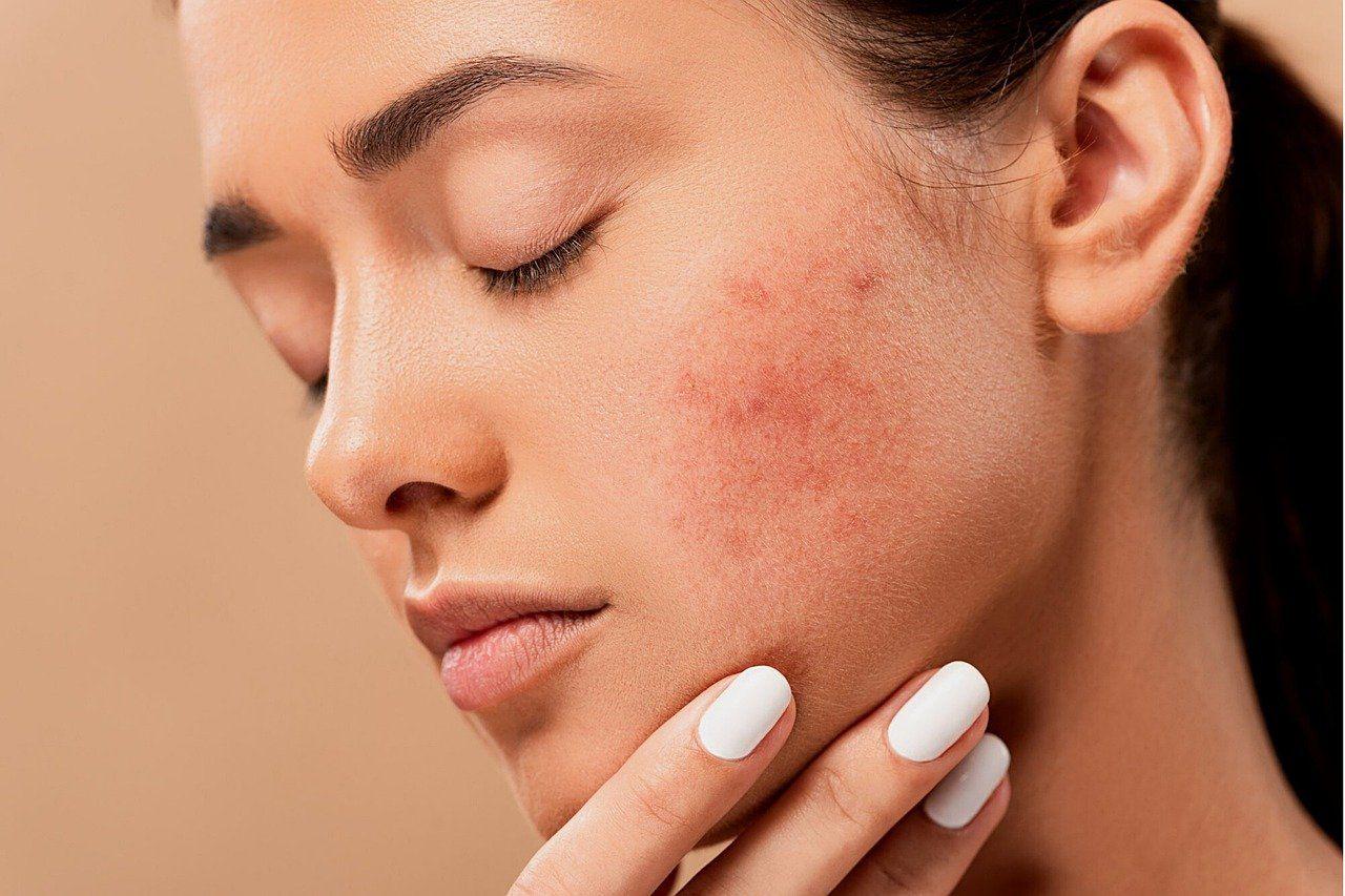 skin allergy in delhi