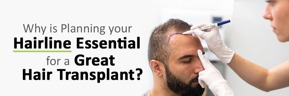 Why is Planning your Hairline Essential for a Great Hair Transplant