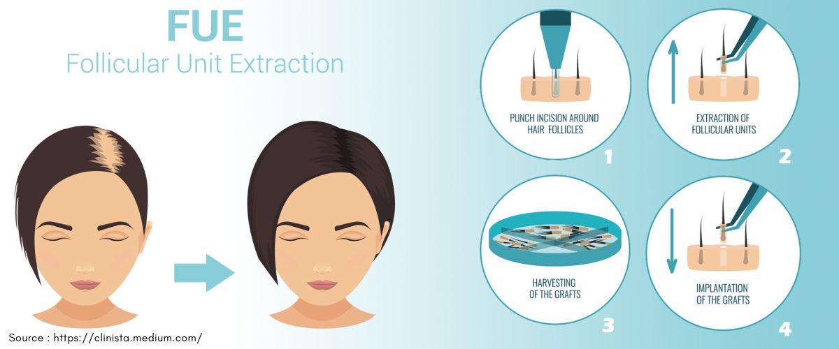FUE hair restoration process
