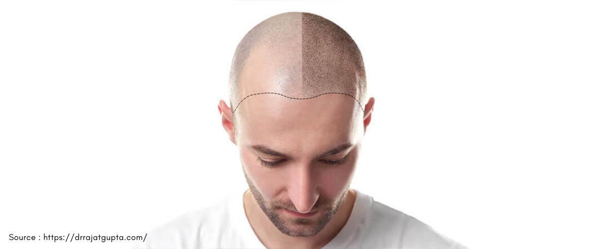 Natural Hair Transplant