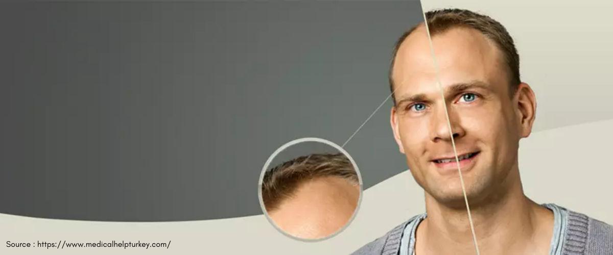 Great Hair Transplant
