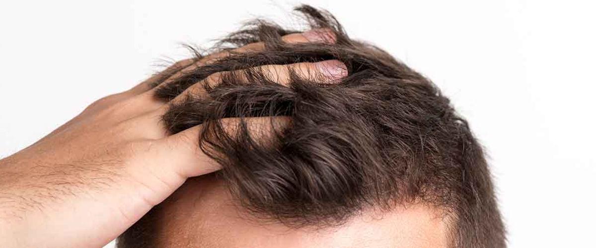 Myths about Hair Transplants