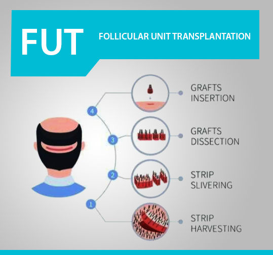 FUT Hair Transplant in Jaipur