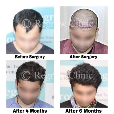 Before after Images