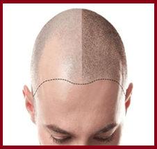 scalp micropigmentation in mumbai