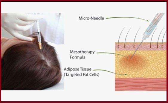 mesotherapy procedure at Rejoice Hair Transplant