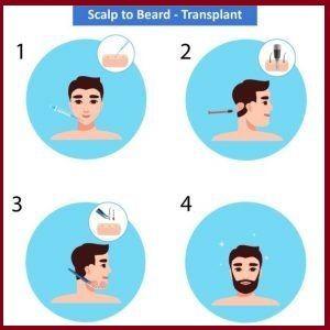 beard hair transplant procedure
