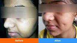dimpleplasty in Navi Mumbai
