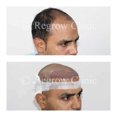 Before - After Surgery Images of Patients