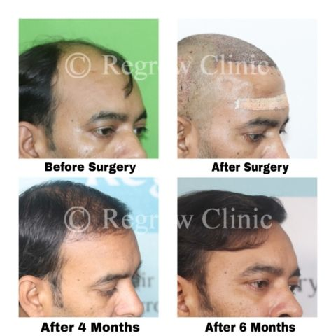 Before - After Images of Patients