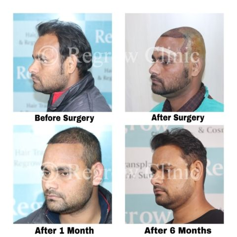 Before - After Treatment Images of Patients