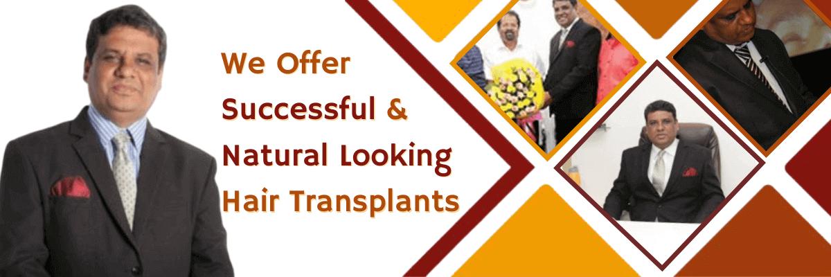 Hair Transplant in Pune