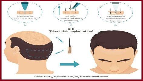 Direct hair implantation (DHI)