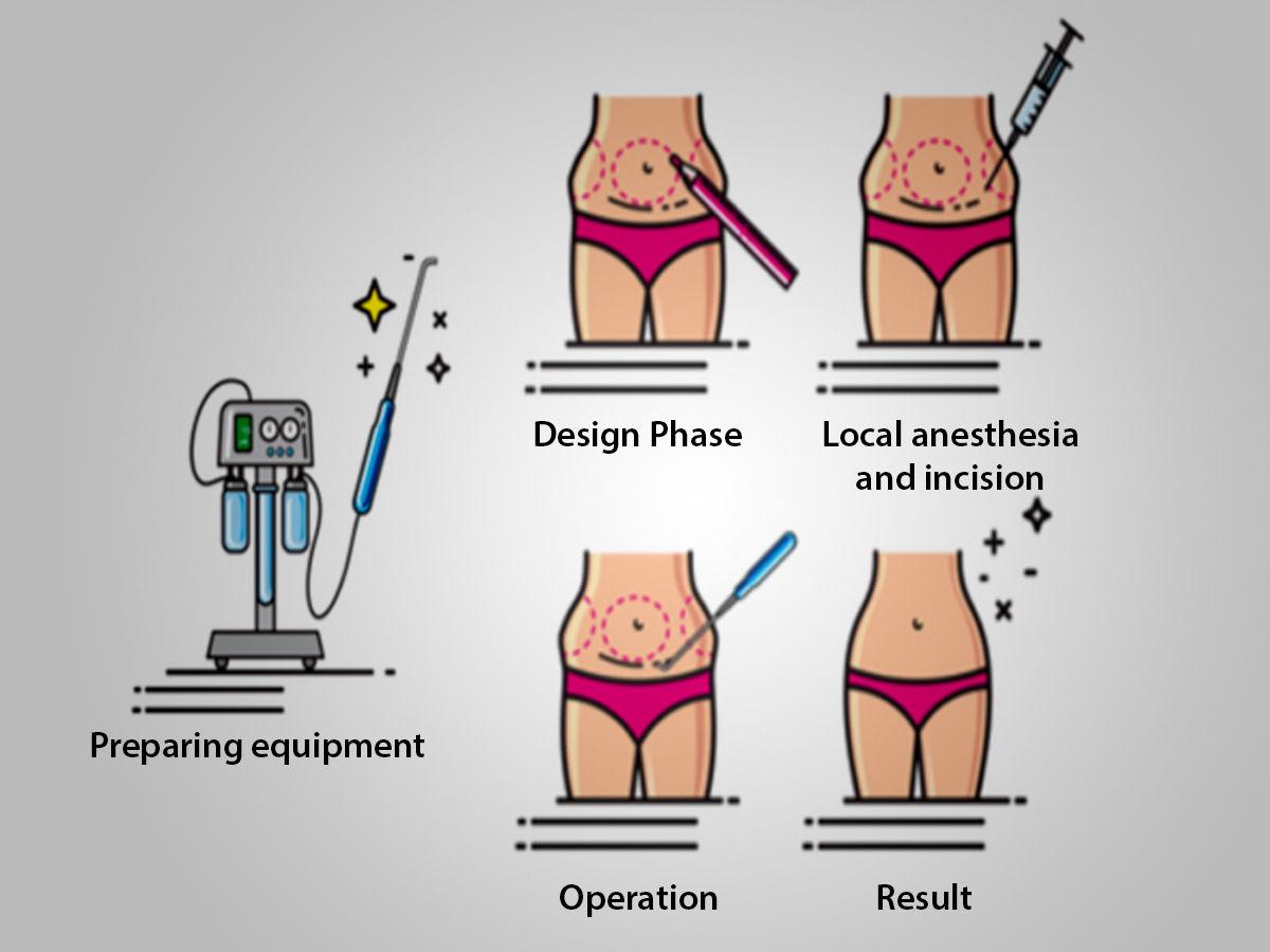 Liposuction in Jaipur