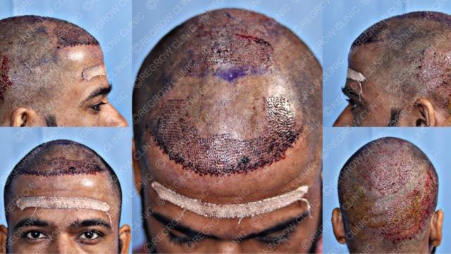 Grafts Placement Picture of Patient