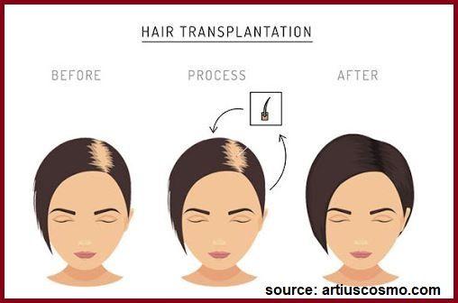 hair transplant for women process