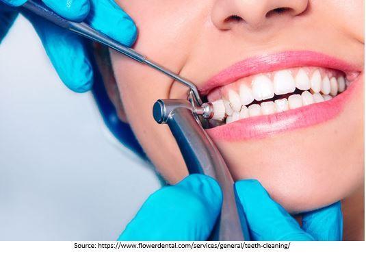 Teeth Polishing