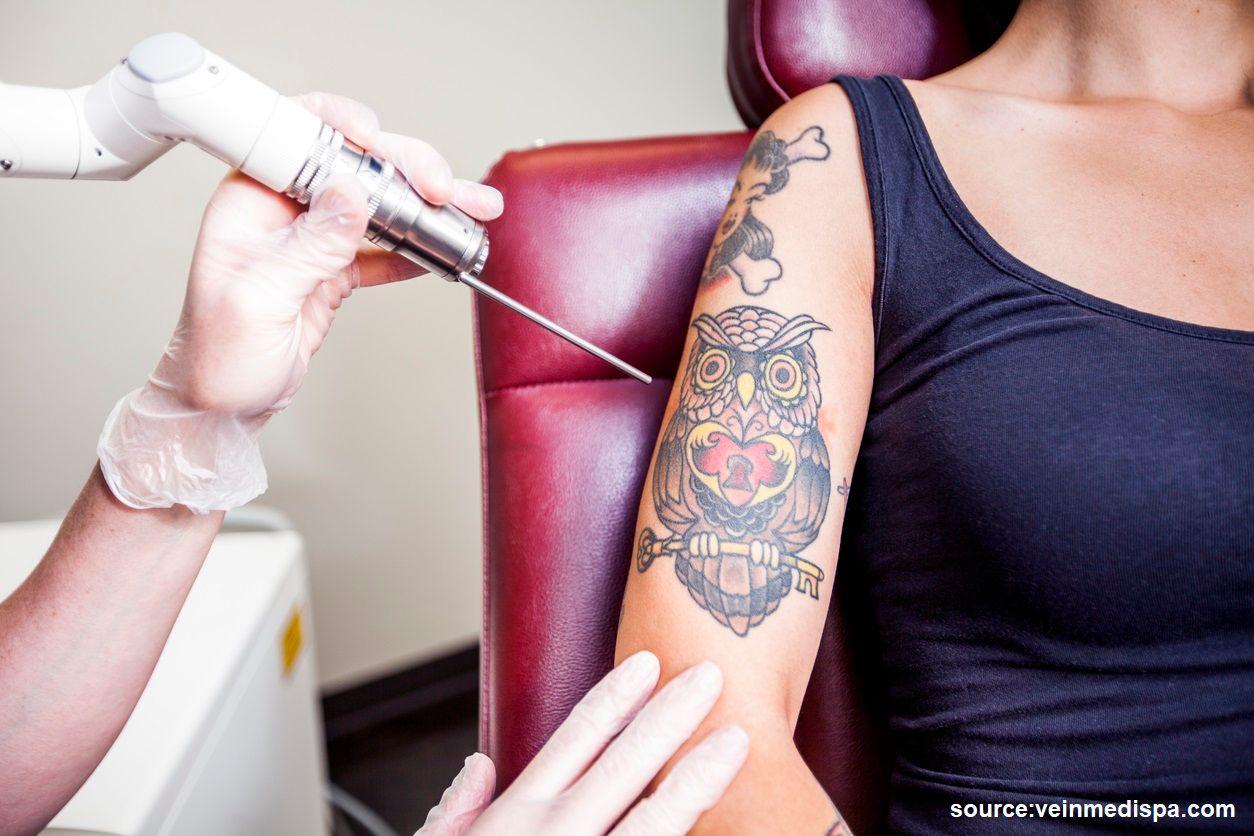 avoid tattooing over varicose veins