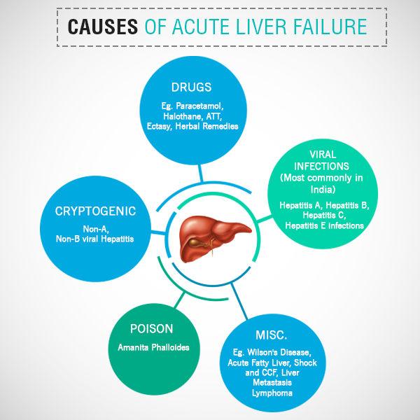 Causes of Acute Liver Failure